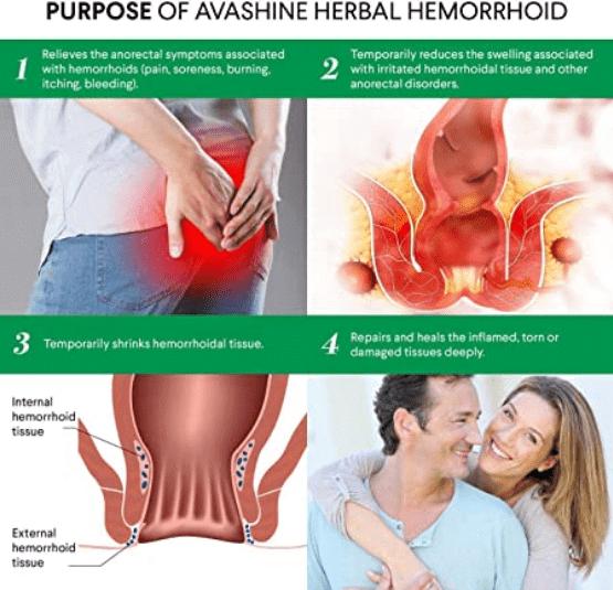 Hämorrhoiden: Behandlung, Symptome, Vorbeugung und Varikozele